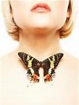 Гипотиреоз щитовидной железы, причины, симптомы.