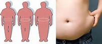 Метаболический синдром. Абдоминальное ожирение.