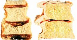 Остеопороз  у женщин. Профилактика остеопороза