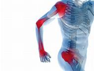 Причина боли в суставах и мышцах. Артрит